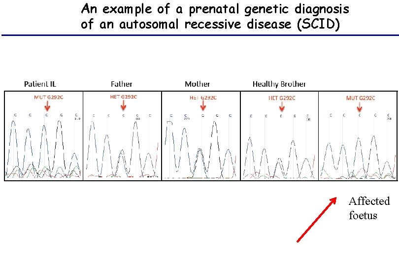 An example of a prenatal genetic diagnosis of an autosomal recessive disease (SCID) Affected
