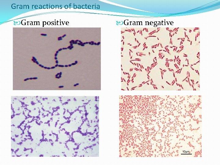 Gram reactions of bacteria Gram positive Gram negative