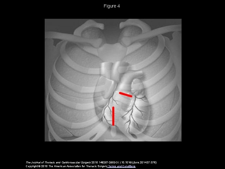 Figure 4 The Journal of Thoracic and Cardiovascular Surgery 2015 149257 -265 DOI: (10.