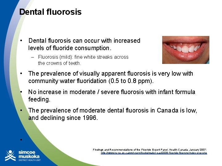 Dental fluorosis • Dental fluorosis can occur with increased levels of fluoride consumption. –