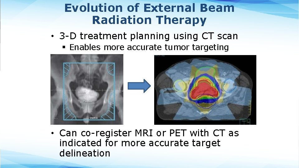 Evolution of External Beam Radiation Therapy • 3 -D treatment planning using CT scan