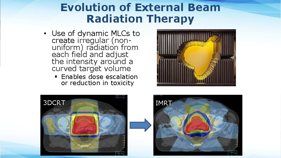 Evolution of External Beam Radiation Therapy • Use of dynamic MLCs to create irregular