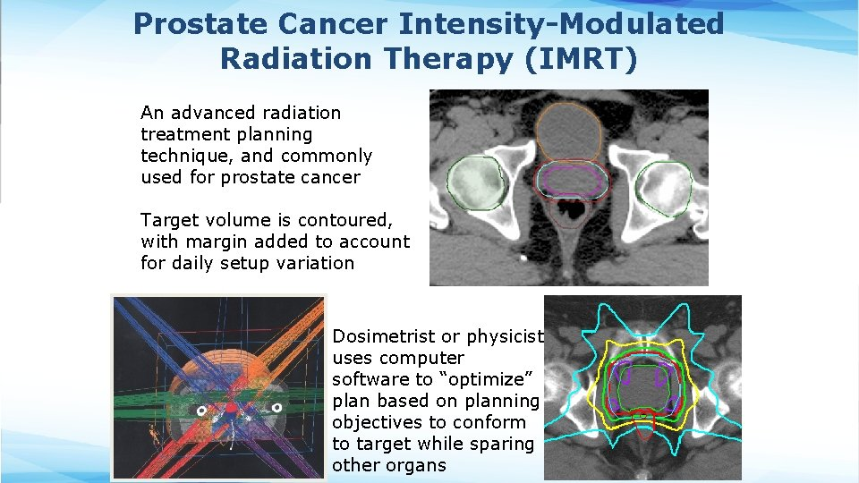 Prostate Cancer Intensity-Modulated Radiation Therapy (IMRT) An advanced radiation treatment planning technique, and commonly