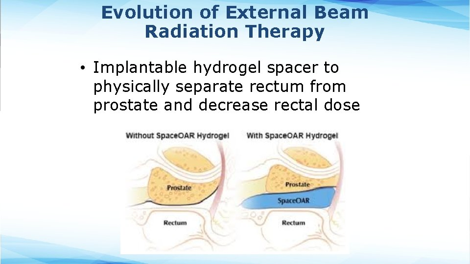 Evolution of External Beam Radiation Therapy • Implantable hydrogel spacer to physically separate rectum
