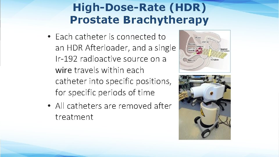 High-Dose-Rate (HDR) Prostate Brachytherapy • Each catheter is connected to an HDR Afterloader, and
