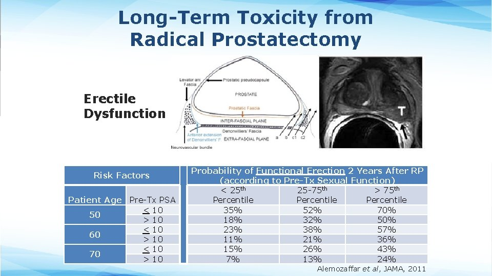 Long-Term Toxicity from Radical Prostatectomy Erectile Dysfunction Risk Factors Patient Age Pre-Tx PSA <