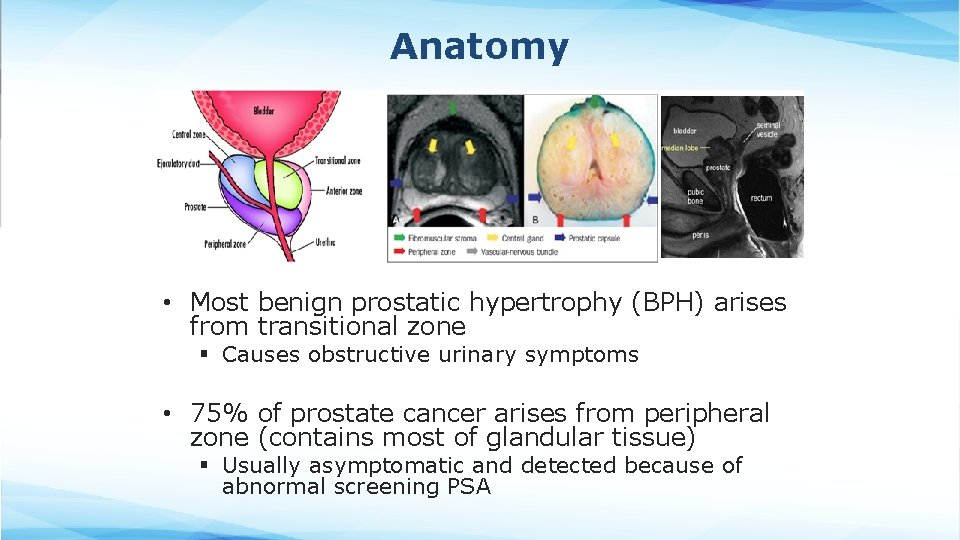Anatomy • Most benign prostatic hypertrophy (BPH) arises from transitional zone § Causes obstructive