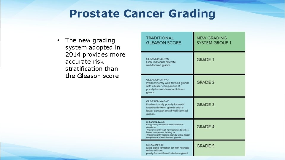 Prostate Cancer Grading • The new grading system adopted in 2014 provides more accurate