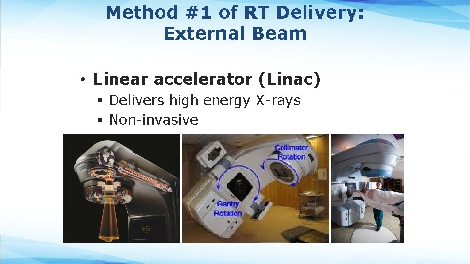 Method #1 of RT Delivery: External Beam • Linear accelerator (Linac) § Delivers high