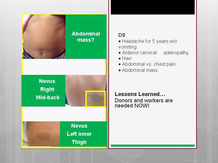 Abdominal mass? Nevus Right Mid-back DS Headache for 5 years w/o vomiting Anterior cervical
