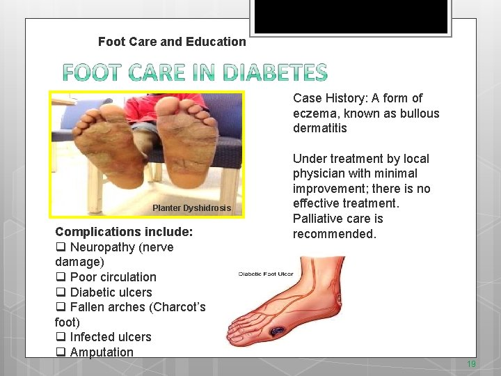 v. Foot Care and Education Case History: A form of eczema, known as bullous