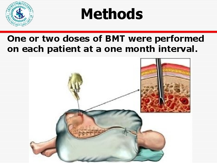 Methods One or two doses of BMT were performed on each patient at a