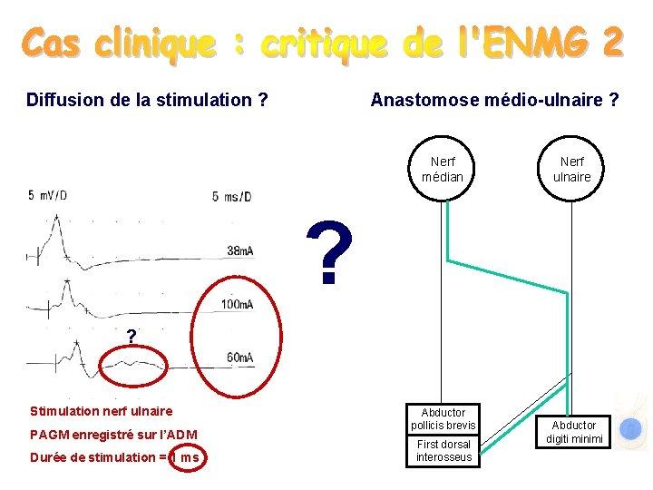 Diffusion de la stimulation ? Anastomose médio-ulnaire ? Nerf médian Nerf ulnaire ? ?