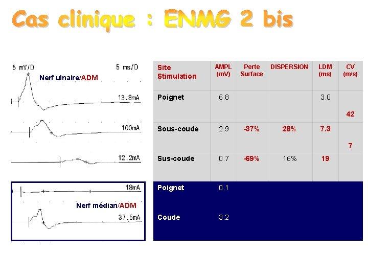 Nerf ulnaire/ADM Site Stimulation Poignet AMPL (m. V) Perte Surface DISPERSION 6. 8 LDM
