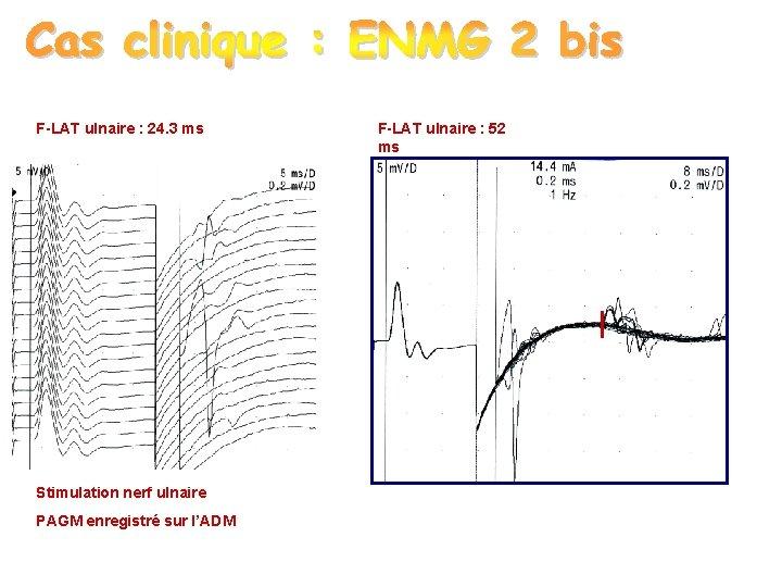 F-LAT ulnaire : 24. 3 ms F-LAT ulnaire : 52 ms ? Stimulation nerf