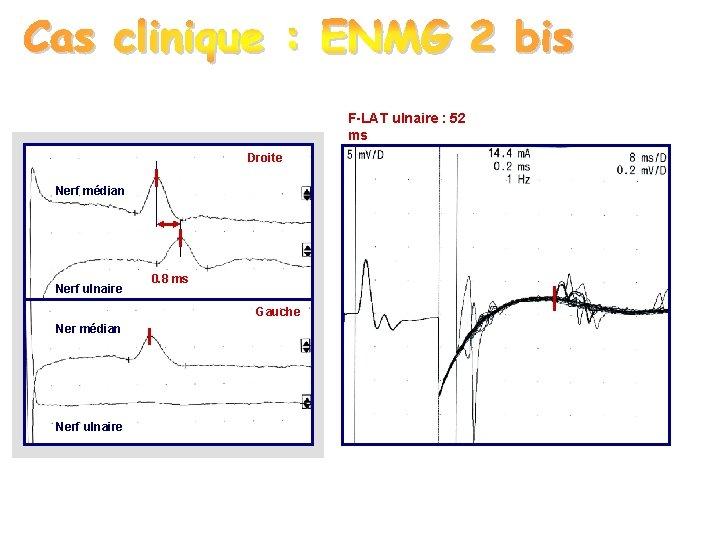 F-LAT ulnaire : 52 ms Droite Nerf médian Nerf ulnaire 0. 8 ms Gauche