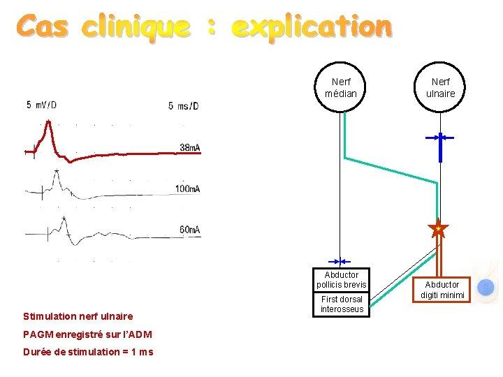 Nerf médian Abductor pollicis brevis Stimulation nerf ulnaire PAGM enregistré sur l'ADM Durée de