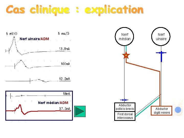 Nerf ulnaire/ADM Nerf médian Abductor pollicis brevis First dorsal interosseus Nerf ulnaire Abductor digiti