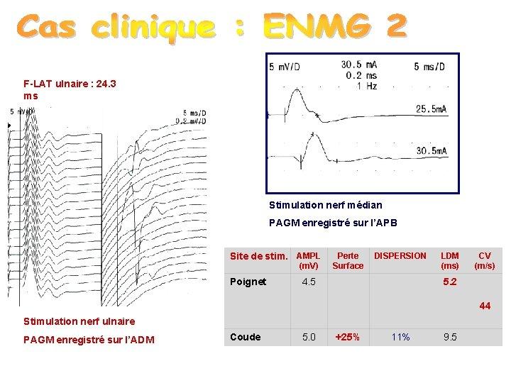 F-LAT ulnaire : 24. 3 ms Stimulation nerf médian PAGM enregistré sur l'APB Site