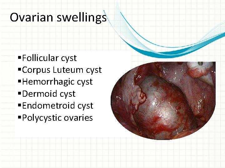 Ovarian swellings §Follicular cyst §Corpus Luteum cyst §Hemorrhagic cyst §Dermoid cyst §Endometroid cyst §Polycystic