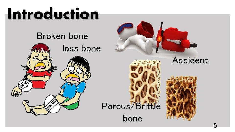 Introduction Broken bone loss bone Accident Porous/Brittle bone 5