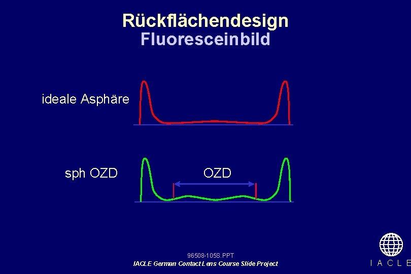 Rückflächendesign Fluoresceinbild ideale Asphäre sph OZD 96508 -105 S. PPT IACLE German Contact Lens