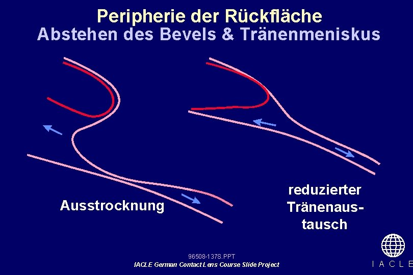 Peripherie der Rückfläche Abstehen des Bevels & Tränenmeniskus Ausstrocknung 96508 -137 S. PPT IACLE