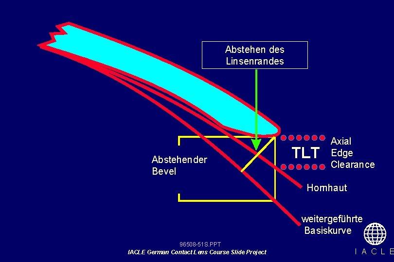 Abstehen des Linsenrandes Abstehender Bevel TLT Axial Edge Clearance Hornhaut weitergeführte Basiskurve 96508 -51