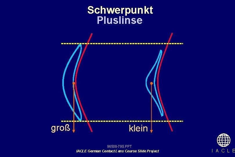 Schwerpunkt Pluslinse groß klein 96508 -79 S. PPT IACLE German Contact Lens Course Slide