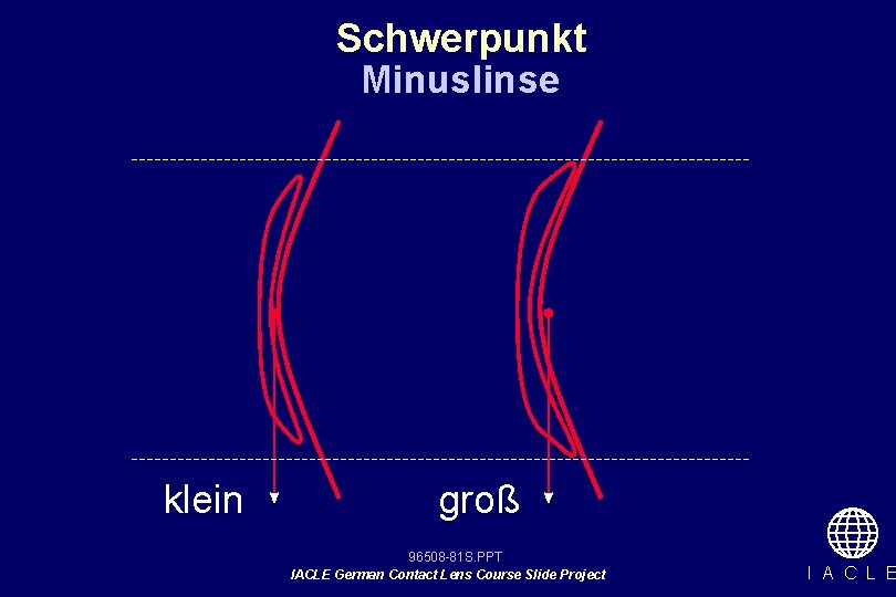 Schwerpunkt Minuslinse klein groß 96508 -81 S. PPT IACLE German Contact Lens Course Slide