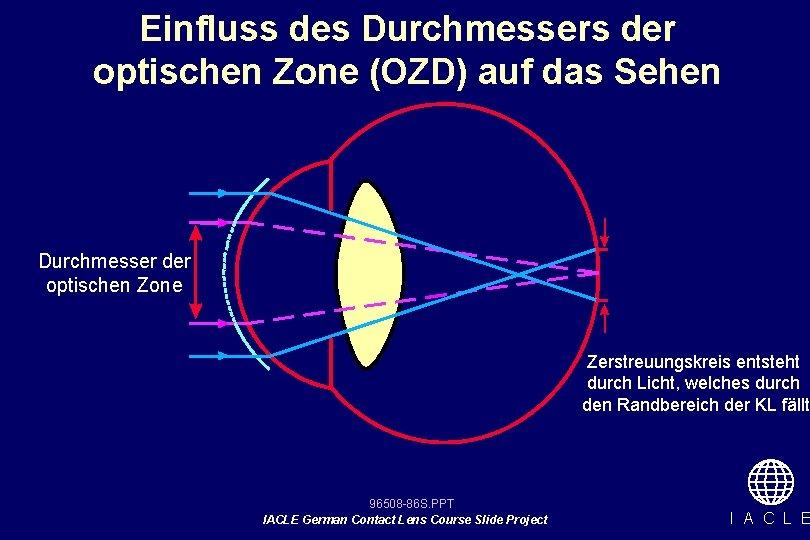 Einfluss des Durchmessers der optischen Zone (OZD) auf das Sehen Durchmesser der optischen Zone