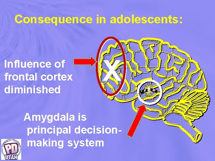 Consequence in adolescents: Influence of frontal cortex diminished X Amygdala is principal decision making