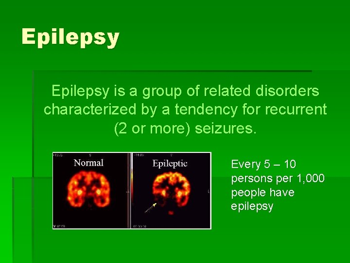 Epilepsy is a group of related disorders characterized by a tendency for recurrent (2