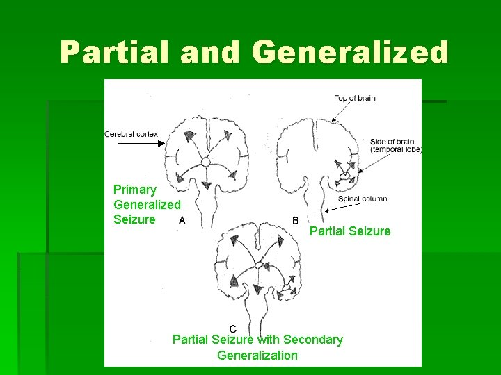 Partial and Generalized Primary Generalized Seizure Partial Seizure with Secondary Generalization