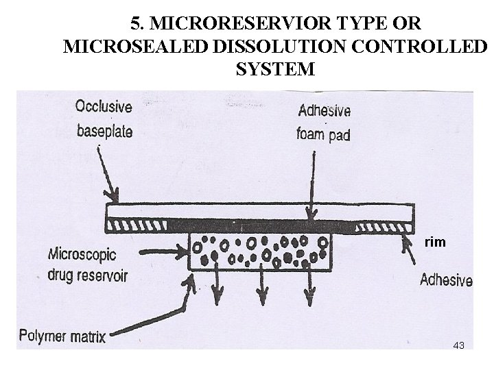 5. MICRORESERVIOR TYPE OR MICROSEALED DISSOLUTION CONTROLLED SYSTEM rim 43