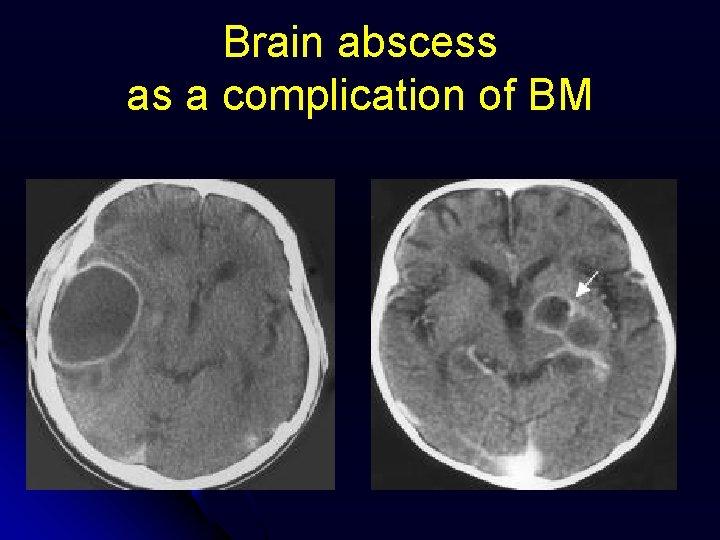 Brain abscess as a complication of BM