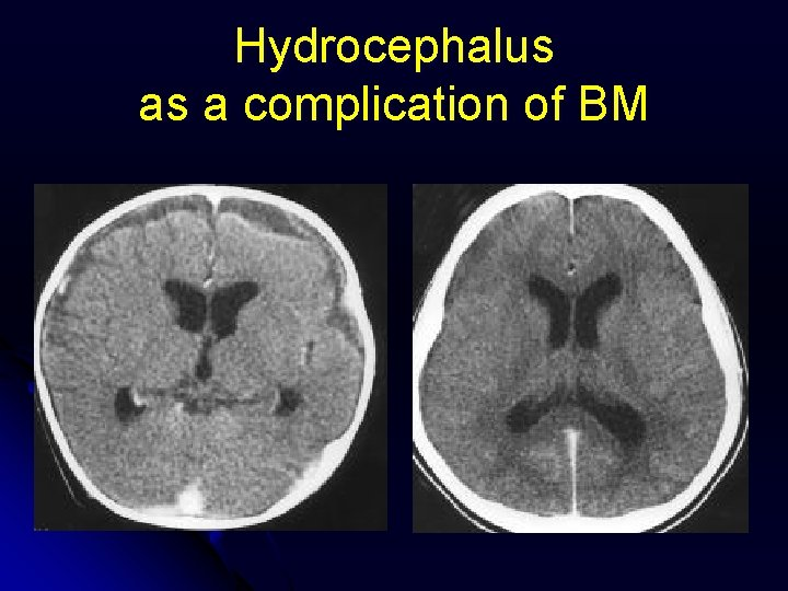 Hydrocephalus as a complication of BM