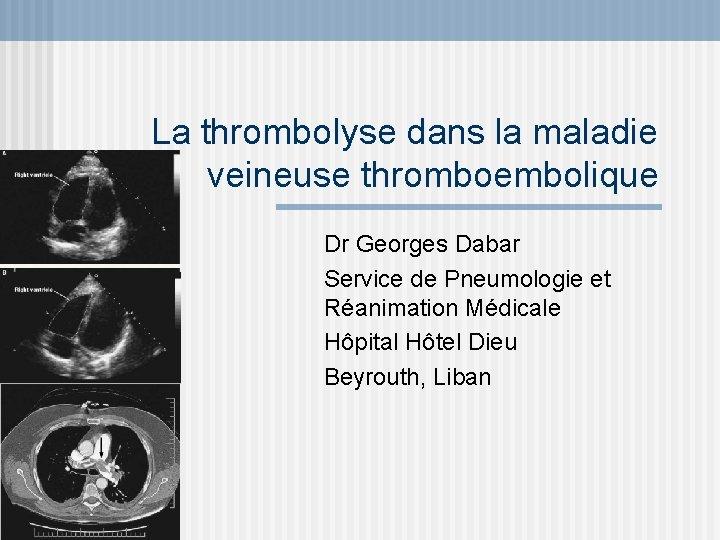 La thrombolyse dans la maladie veineuse thromboembolique Dr Georges Dabar Service de Pneumologie et