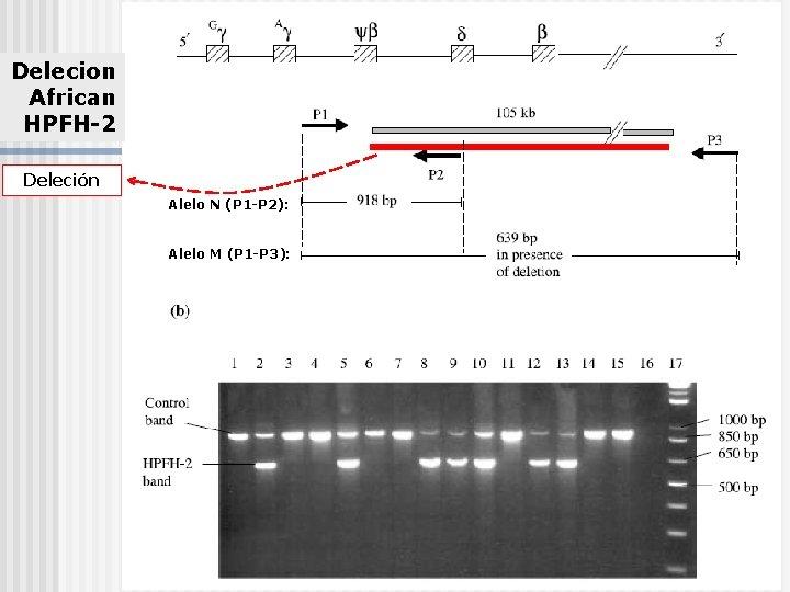 Delecion African HPFH-2 Deleción Alelo N (P 1 -P 2): Alelo M (P 1