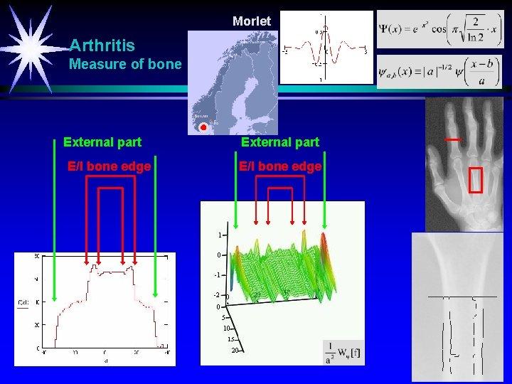 Morlet Arthritis Measure of bone External part E/I bone edge