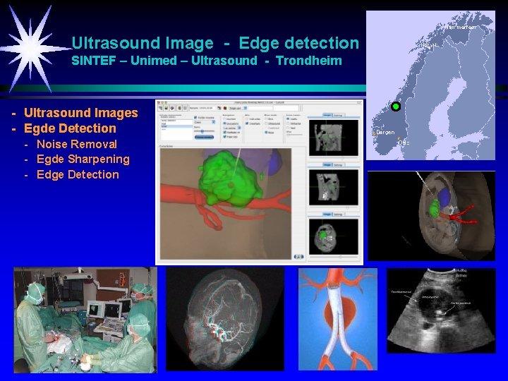 Ultrasound Image - Edge detection SINTEF – Unimed – Ultrasound - Trondheim - Ultrasound