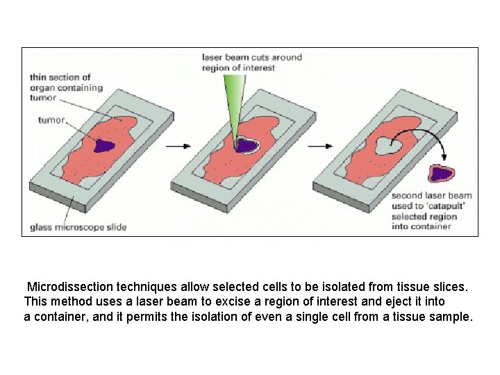 Microdissection techniques allow selected cells to be isolated from tissue slices. This method
