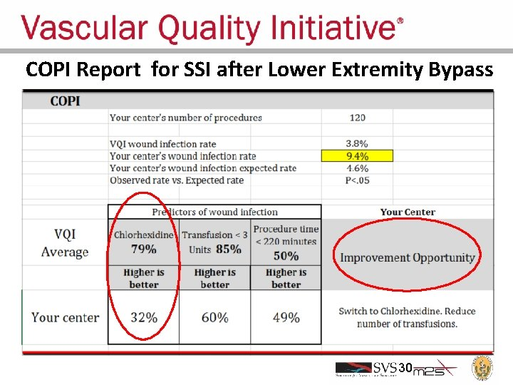 COPI Report for SSI after Lower Extremity Bypass 30