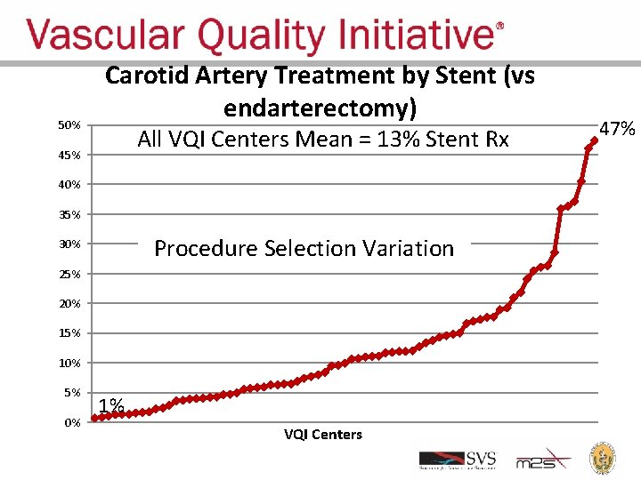 50% Carotid Artery Treatment by Stent (vs endarterectomy) All VQI Centers Mean = 13%