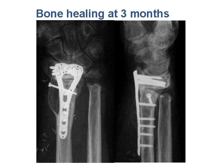 Bone healing at 3 months