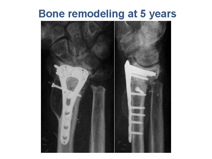 Bone remodeling at 5 years