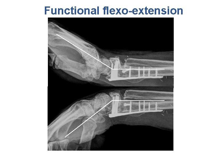 Functional flexo-extension