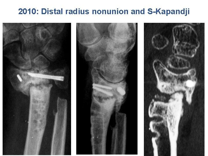 2010: Distal radius nonunion and S-Kapandji