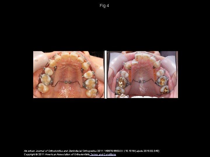 Fig 4 American Journal of Orthodontics and Dentofacial Orthopedics 2011 140879 -885 DOI: (10.