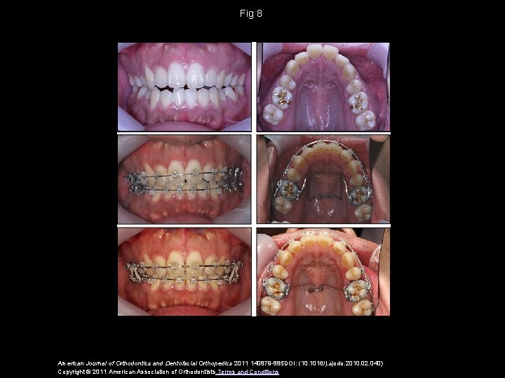 Fig 8 American Journal of Orthodontics and Dentofacial Orthopedics 2011 140879 -885 DOI: (10.